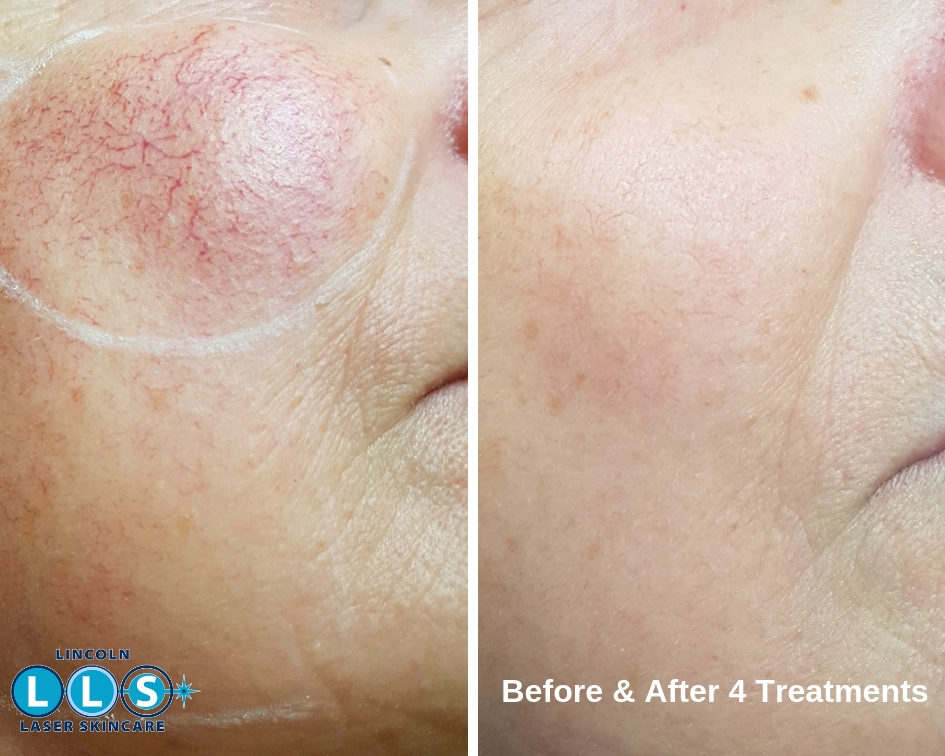 Thread Veins And Vascular Lesions Treatments Lincoln